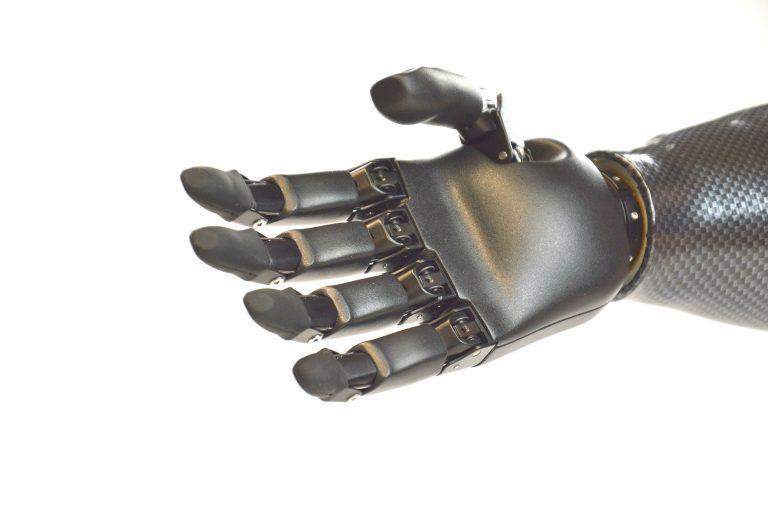 proteza mioelektryczna dłoni