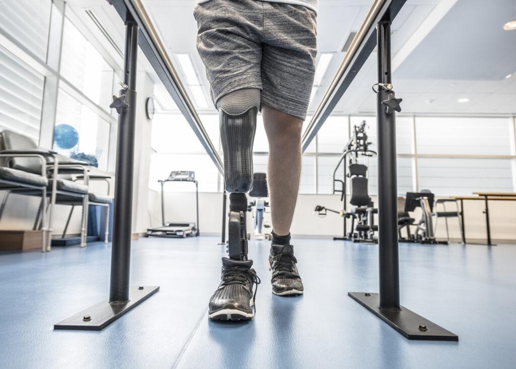 Jak prawidłowo używać protezy kończyny dolnej?